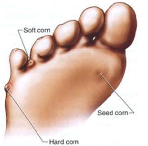 Corns1