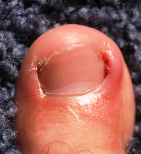 Do you suffer from ingrown toe nails?