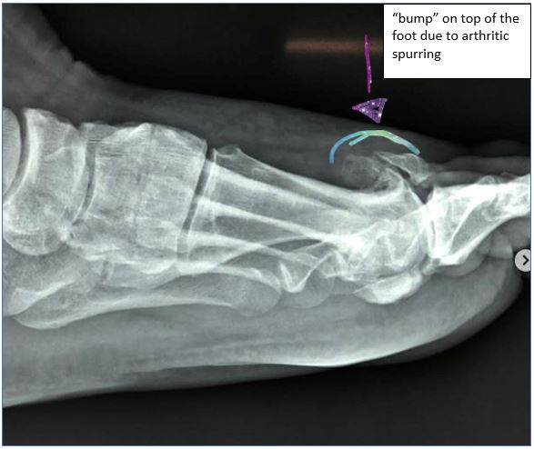 Is that bump on your toe really a bunion?