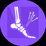 Dry needling -  Sydney Foot Clinic